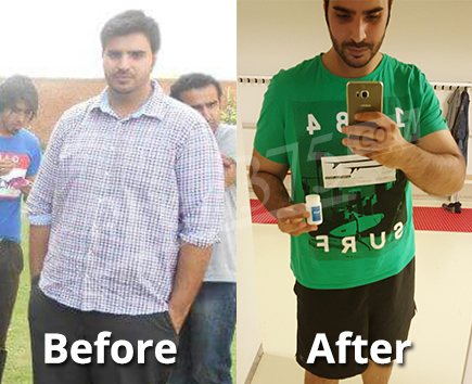 Mohammad before and after picture