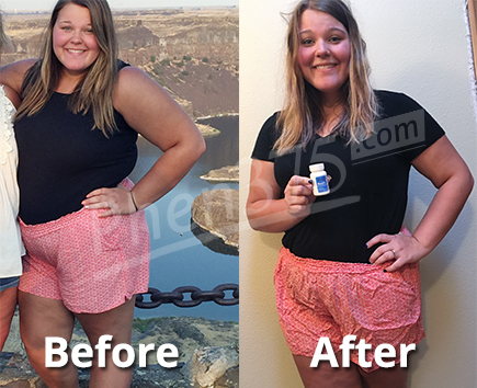 Elysiaphen375 before and after picture