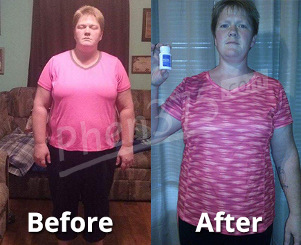 Sarah before and after photo
