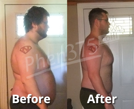 Tristanbefore and after picture